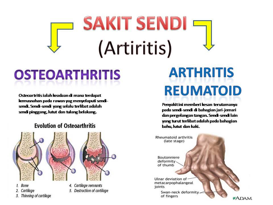 Arthritis Reaumatoid