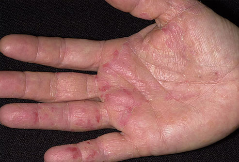 eczema11