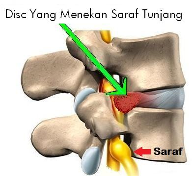 Herniated_Disc-1