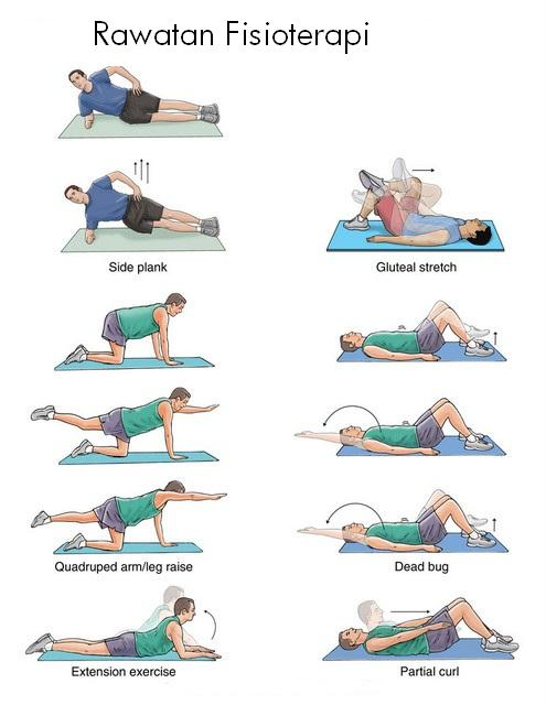 exercise for backpain