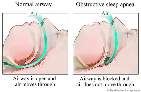 airway-photo