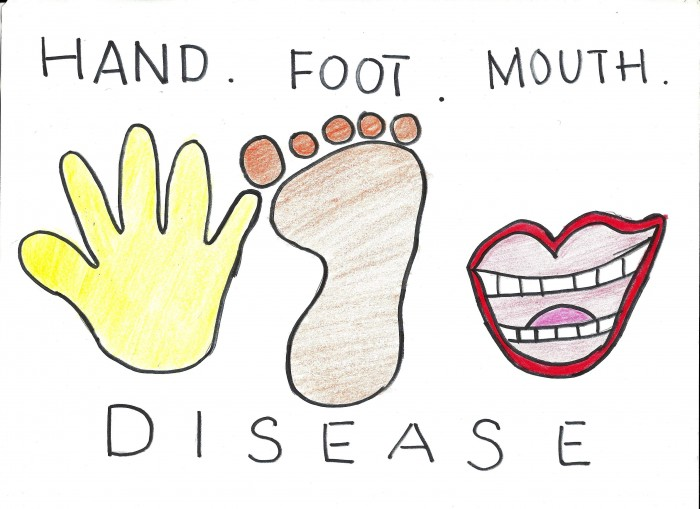 hand-foot-mouth-disease-700x509