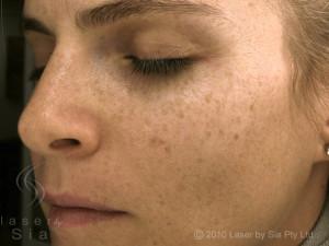 Skin-Pigmentation-Before