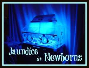 newborn-jaundice-discharge