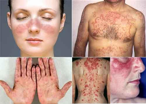 obat-penyakit-lupus