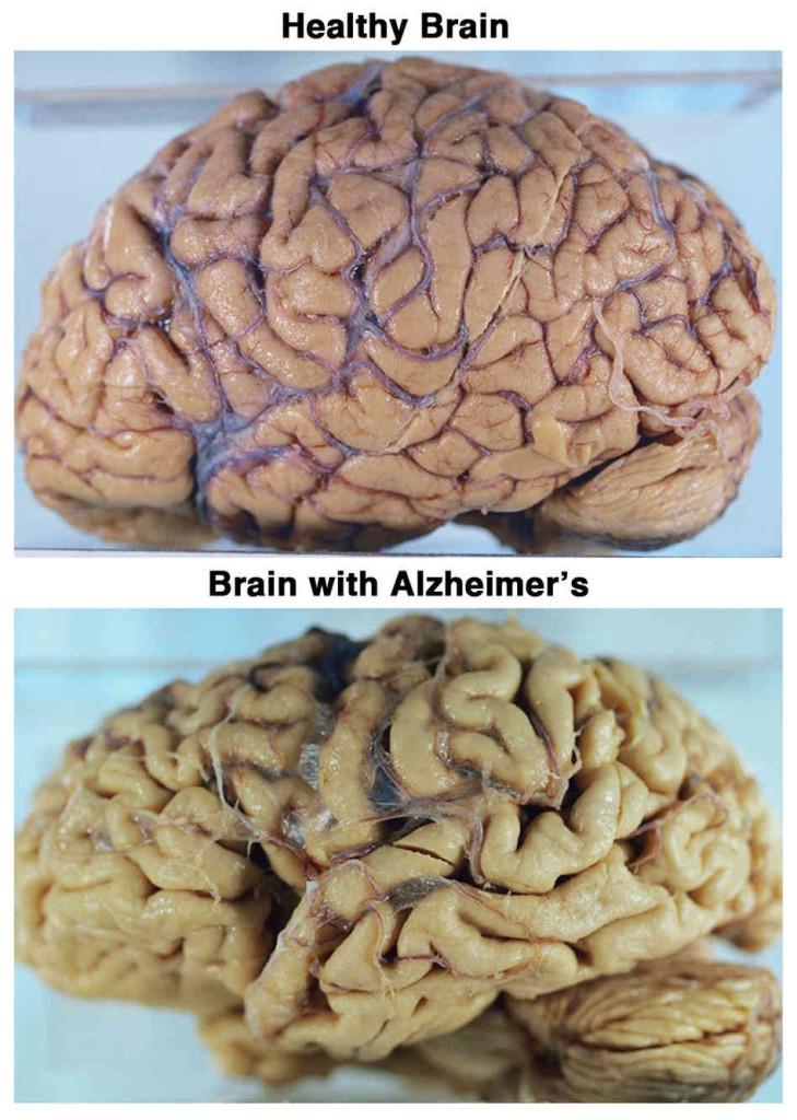 brain_custom-7dc8b13482809aa284fab1625375caecd883ccd7-s6-c30