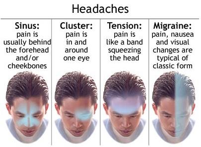 jenis migrain