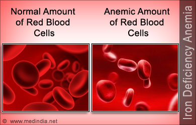 iron-deficiency-anemia