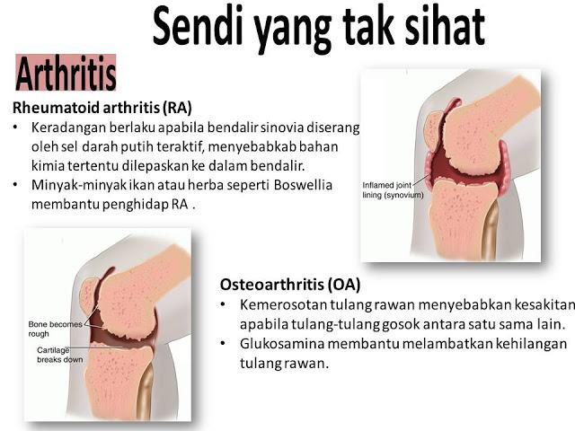sakit sendi lutut